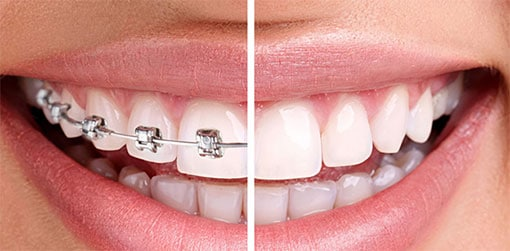 Orthodontics - Braces Before and After