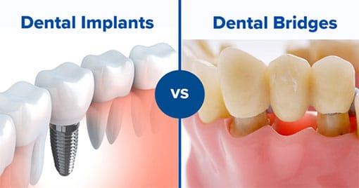 Dental Implants vs Dental Bridges