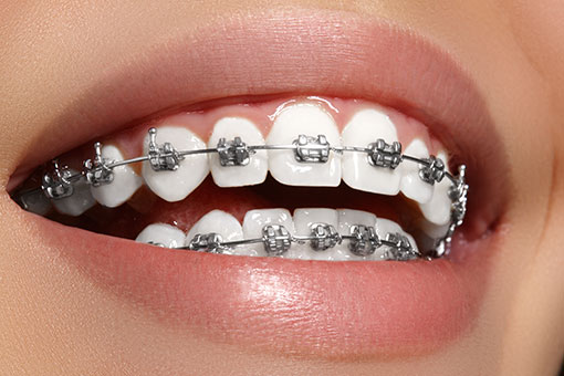 Orthodontics - Dental Braces