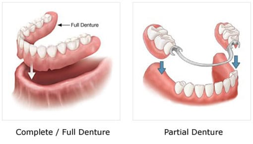 Dentures - Complete / Full and Partial
