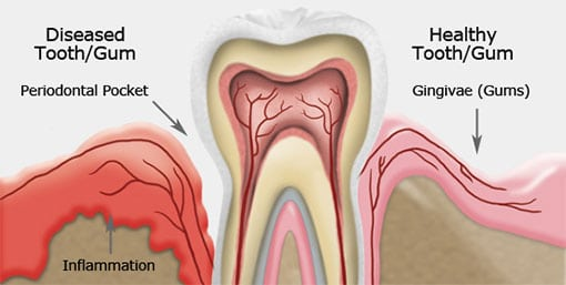 Family Dentistry - Gum Disease Therapy