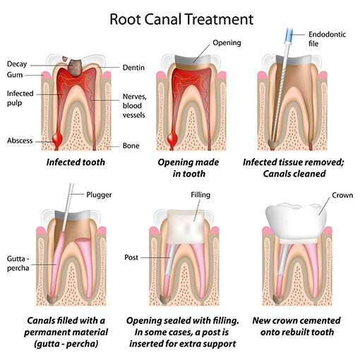 Family Dentistry - Root Canals